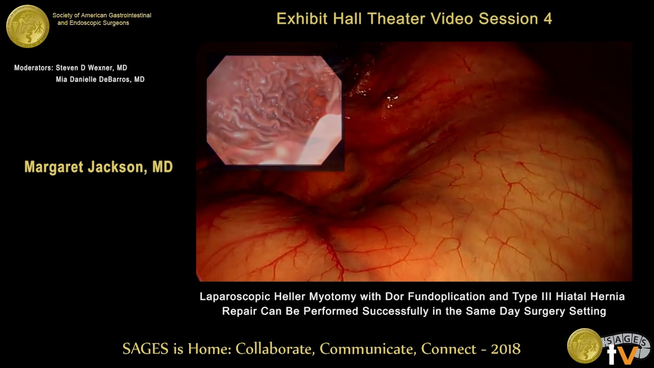 Laparoscopic reduction of incarcerated Type III hiatal hernia, primary  crural closure