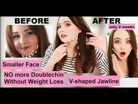 HOW I CHANGED MY FACIAL BONE STRUCTURE by MEWING, V-shaped jawline, no more doublechin