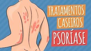 PSORÍASE | Tratamentos Caseiros