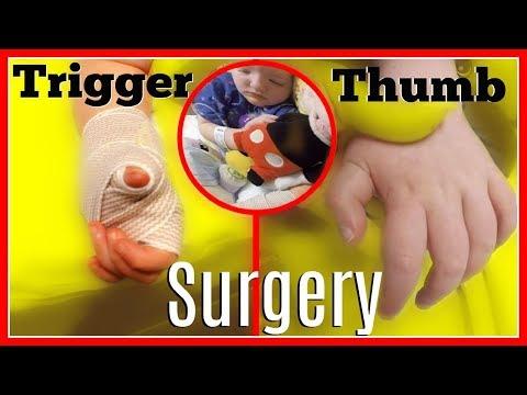 Trigger Thumb Surgery | VLOG #200