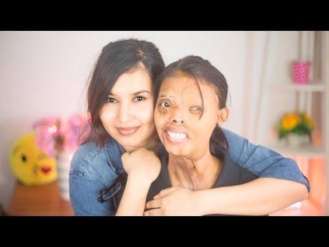 Meet Shabbo | #BEAUTYLIESWITHIN #EndAcidSale