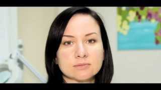видео Плазмолифтинг кожи — методика омоложения и отзывы