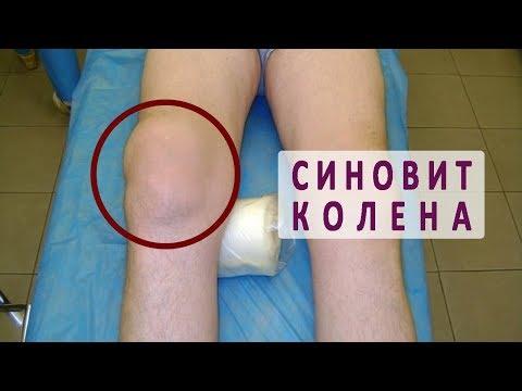 Опухоль на коленной чашечке не болит