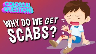 Why Do We Get Scabs?   COLOSSAL QUESTIONS