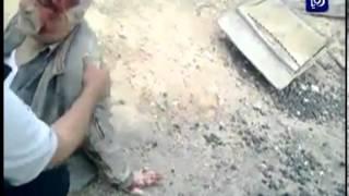 مشاهد من حادث حافلة المعتمرين في العدسية - الأردن | Roya