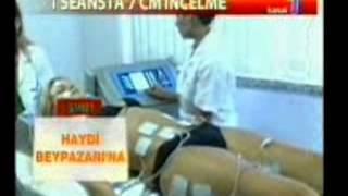 tratamentul ultraton varicoză)