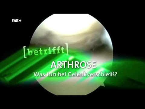 """""""Arthrose - Was tun bei Gelenkverschleiß?"""""""