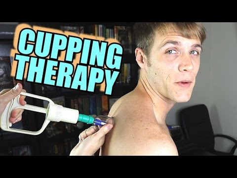 Cupping Therapy - Electric Shock Pads In Pants - Trying Life Hacks | TC #143