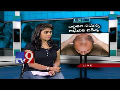 Baldness & Hair Loss    Advanced treatment    Lifeline - TV9