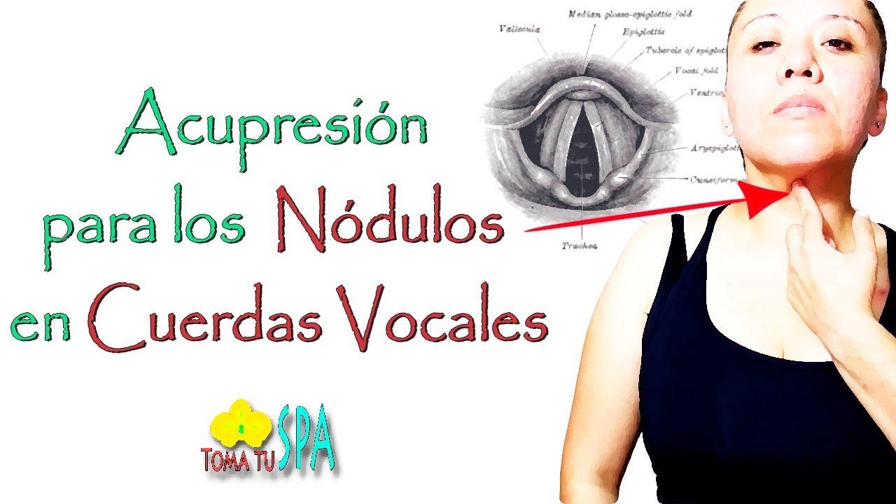 Tratamiento natural para los nodulos en las cuerdas vocales