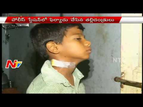 Government School Teacher Attacks Student With Pen | For Not Asking Permission | NTV