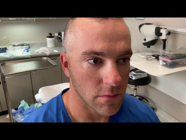 Dallas Hair Transplant FUT Correction with FUE