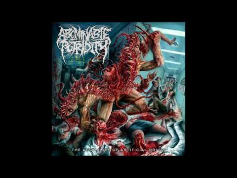 Abominable Putridity - Wormhole Inversion (HQ) 2015 (Remastered)