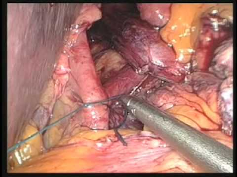 Laparoscopic Paraesophageal Hiatal Hernia Repair