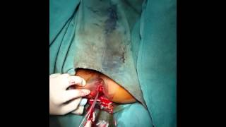 Repeat youtube video Drainage of Perianal Abscess