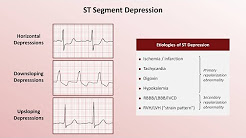 hqdefault - S-t Segment Depression And Decreased R Wave Height