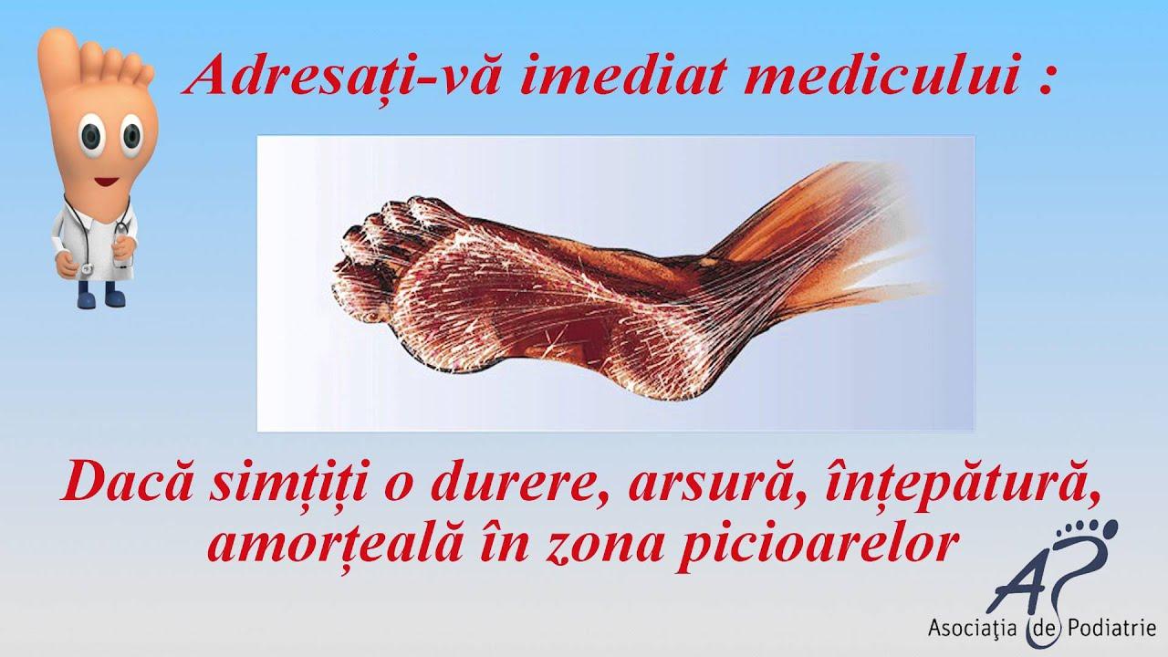 picioare amortite diabetes