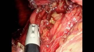 Reduction of a Giant Hiatal Hernia with Toupet Fundoplication
