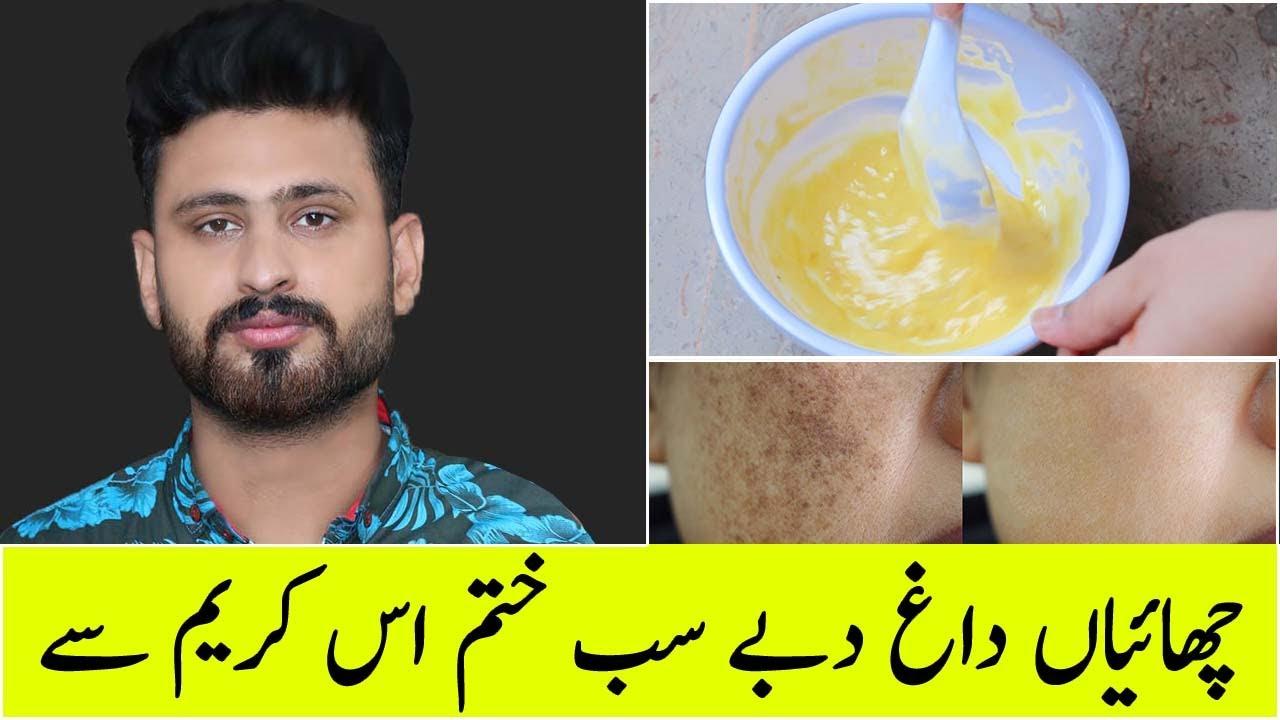 Powerful Cream For Remove Pigmentation Melasma Freckles Dark Spot On Face | Hyderquin 2% Cream