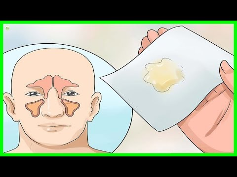 how-to-get-rid-of-phlegm-and-mucus-in-chest-and-throat-instantly---best-home-remedies