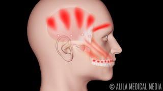 Las dolor articulaciones de cabeza intenso y en dolor