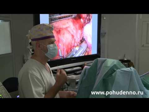 Диета после операции по уменьшению желудка - ограничения
