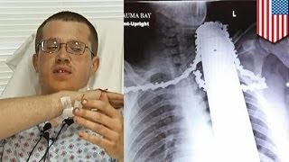 Tree trimmer defies death after chainsaw blade gets lodged in his neck