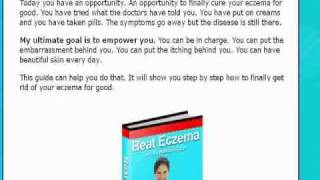 Eczema -eczema cure diet - You must see it Thumbnail