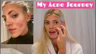 My Acne Journey | Tips | Clearing My Skin | Part 1 | Devon Windsor