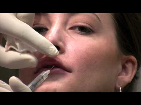 Juvederm Ultra filler injection to lips for lip augmentation in Virginia
