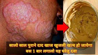 बस एकबार लगालो यह दवा दाद खाज खुजली खत्म हो जायेगा || dad Khan khujli & fungal infection ka ilaj