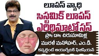 Lupus or SLE | Ayurvedic Treatment | Prof. Dr. Murali Manohar Chirumamilla, M.D. (Ayurveda)