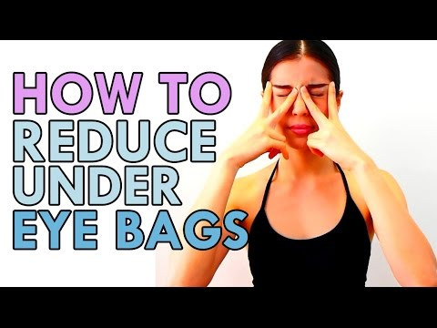 how to avoid eye bags