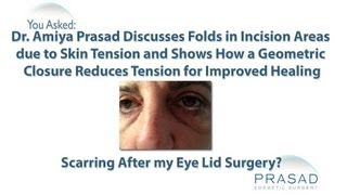 How Skin Tension Can Cause Skin Folds after Eyelid Surgery and How to Prevent Them