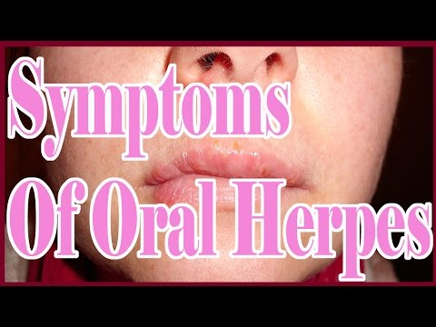 Symptoms Of Oral Herpes : Mouth Herpes