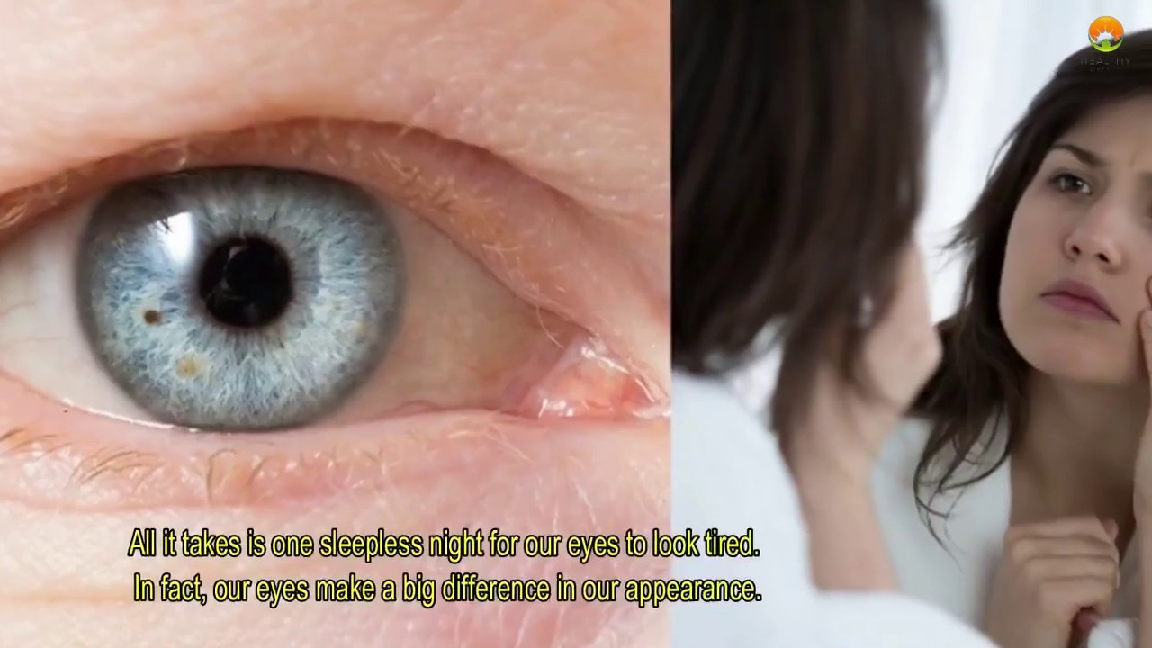 Steroid eye drops droopy eyelid foods rich in natural steroids