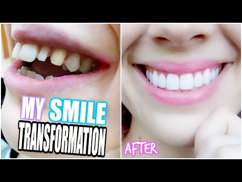 MY SMILE TRANSFORMATION! | Getting Porcelain Veneers!