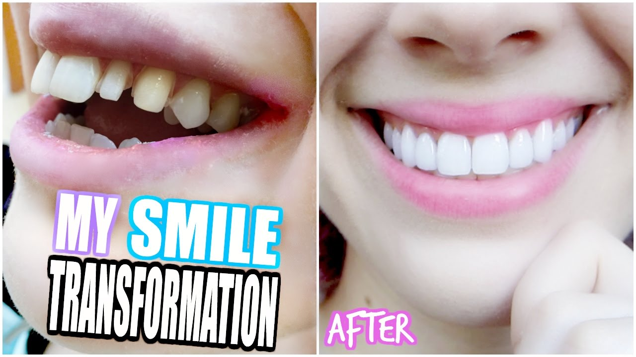 My smile transformation getting porcelain veneers youtube getting porcelain veneers youtube solutioingenieria Gallery