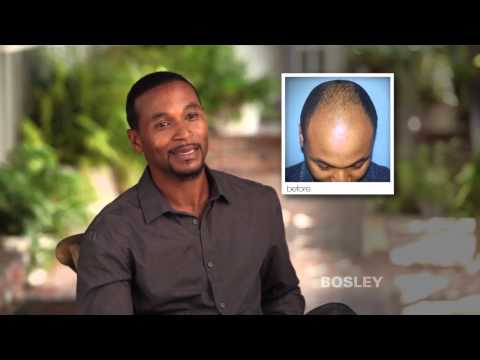 Bosley Hair Restoration Patient Review | Gerald R