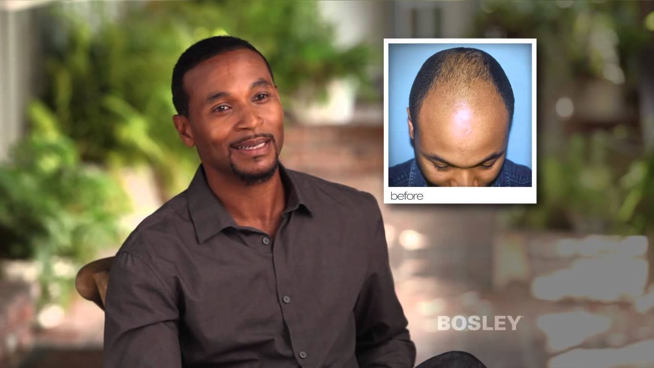 Bosley Hair Restoration Patient Review Gerald R Youtube