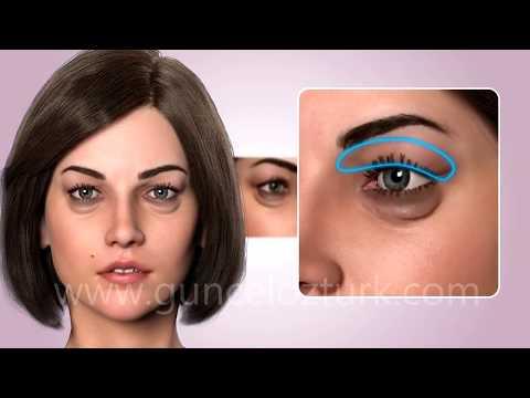 Косметическая хирургия глаз - Эстетическая коррекция нижнего и верхнего века - доктор Гунцель Озтурк
