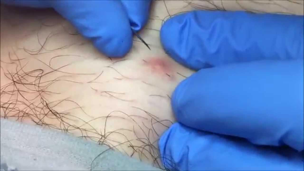 Ingrown Hair Removal on Man's Leg