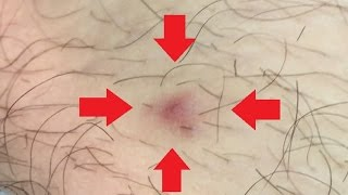 Ingrown Hair Removal on Man