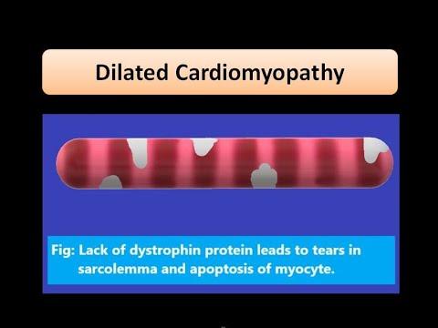 Pathology of Dilated Cardiomyopathy - Types, Etiology ...