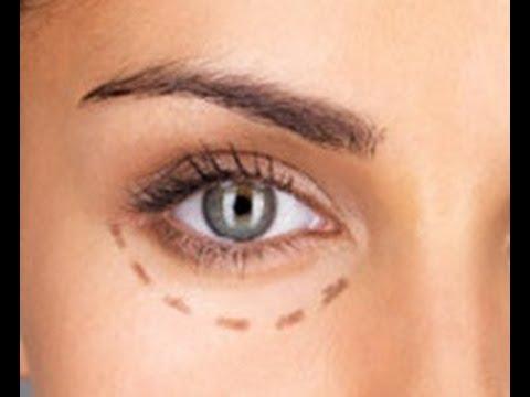 Blefaroplastia operaci n para las bolsas de los ojos for Como se maquillan los ojos ahumados