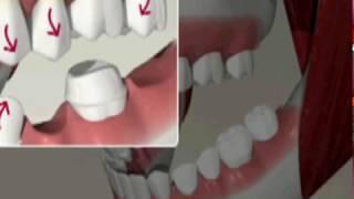 Металлокерамика - металлокерамика зубы цена в Москве