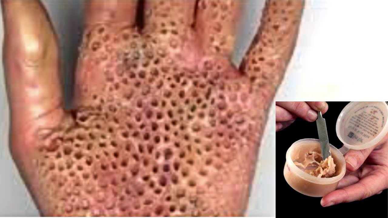 Trypophobia Hand Tutorial Sfx Diy Scar Wax Youtube