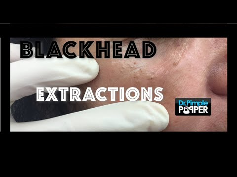 Blackheads extracted around the eyes: Favre Racouchot