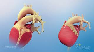 Normal Heart Anatomy vs. Hypoplastic Left Heart Syndrome (HLHS) Anatomy