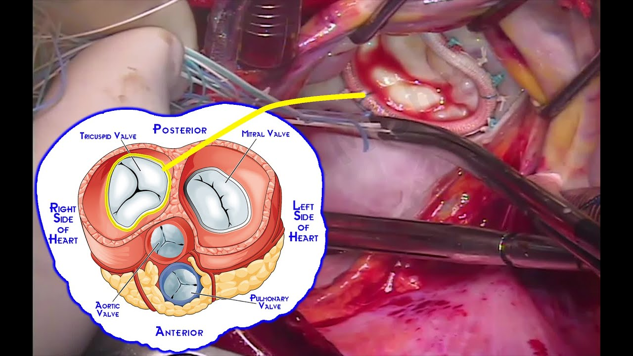 How to Perform combined Mitral & Tricuspid Valve Repair by Dr Yugal ...